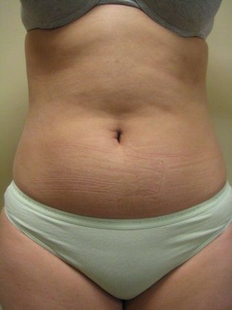 29 year old female before and after SmartLipo of the abdomen