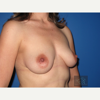35-44 year old woman treated with Breast Lift with Implants before 3094330