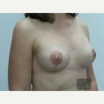 35-44 year old woman treated with Breast Lift with Implants after 3094330