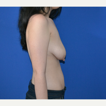 25-34 year old woman treated with Breast Lift before 3466570