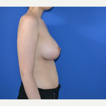 25-34 year old woman treated with Breast Lift after 3466570