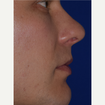30 year old male treated with Juvederm VOLBELLA before 3744415
