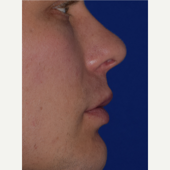 30 year old male treated with Juvederm VOLBELLA after 3744415