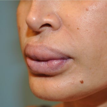 35-44 year old woman treated with Lip Reduction before 2080629