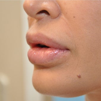 35-44 year old woman treated with Lip Reduction after 2080629