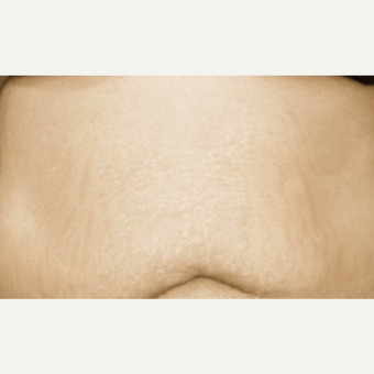 37 year old female underwent 6 sessions of microneedling for stretch marks of the abdomen after 3648951