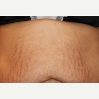 37 year old female underwent 6 sessions of microneedling for stretch marks of the abdomen