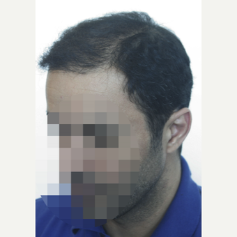25-34 year old man treated with Hair Transplant after 3161427