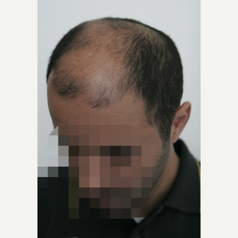 25-34 year old man treated with Hair Transplant before 3161427