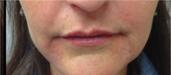 25-34 year old woman treated with Restylane Lyft after 2697715