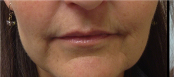 25-34 year old woman treated with Restylane Lyft before 2697715