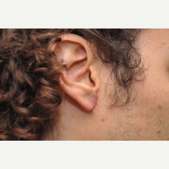 18-24 year old man treated with Ear Surgery