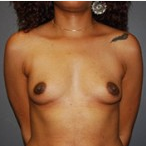 33 year old female receives Breast Implants before 3570257