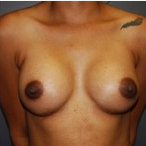 33 year old female receives Breast Implants after 3570257
