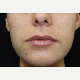 26 year old woman, lip augmentation with Juvederm before 2976655