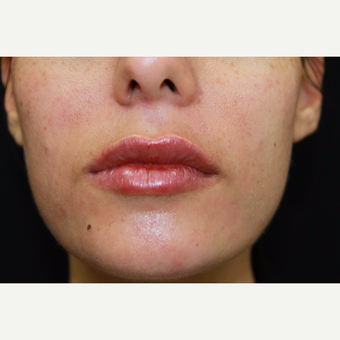 26 year old woman, lip augmentation with Juvederm after 2976655