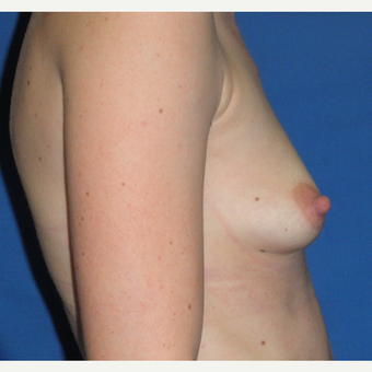 25-34 year old woman treated with Breast Augmentation before 3299963