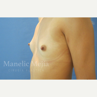 25-34 year old woman treated with Breast Augmentation before 3647243