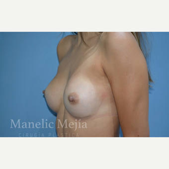 25-34 year old woman treated with Breast Augmentation after 3647243