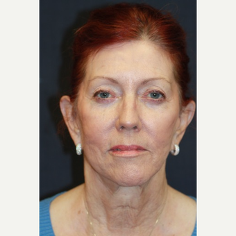 66 year old woman treated with Juvederm after 3689852