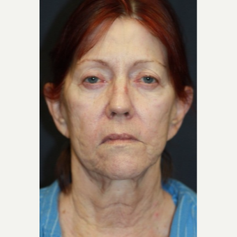 66 year old woman treated with Juvederm before 3689852