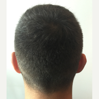 26 years old man treated with FUE Hair Transplant after 3068904