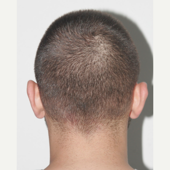 26 years old man treated with FUE Hair Transplant before 3068904