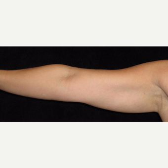 38 year old woman treated with Liposuction of Arms before 3252419