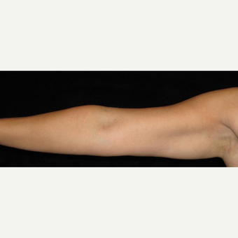 38 year old woman treated with Liposuction of Arms after 3252419