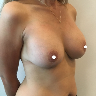 45-54 year old woman treated with Breast Lift with Implants after 3761380