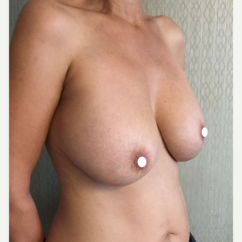 45-54 year old woman treated with Breast Lift with Implants before 3761380