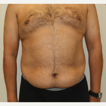 55-64 year old woman treated with Male Tummy Tuck before 3286189