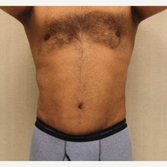 55-64 year old woman treated with Male Tummy Tuck after 3286189
