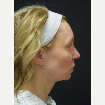 45-54 year old woman treated with Facelift before 3441798