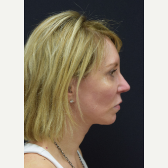 45-54 year old woman treated with Facelift after 3441798