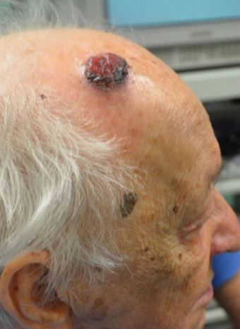65-74 year old man treated with Mole Removal before 1950811