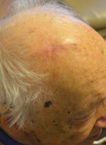 65-74 year old man treated with Mole Removal after 1950811