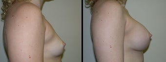 Breast Augmentation before 1232974
