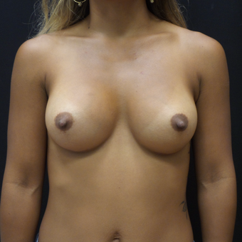 Breast Augmentation after 3007815
