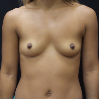 Breast Augmentation before 3007815