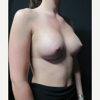 18-24 year old woman treated with Breast Augmentation after 3568533