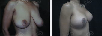 35 y/o patient who underwent a Breast Lift without implants 1403342