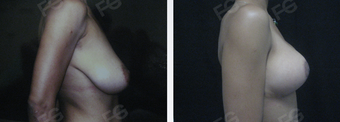 35 y/o patient who underwent a Breast Lift without implants after 1403342