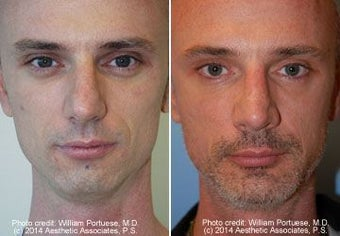 Rhinoplasty, Chin Implant before 91930