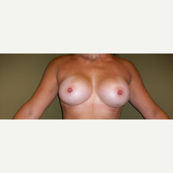 35-44 year old woman treated with Breast Augmentation after 3621371