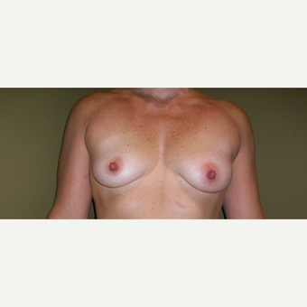 35-44 year old woman treated with Breast Augmentation before 3621371