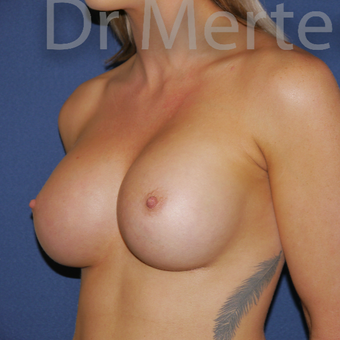 18-24 year old woman treated with Breast Augmentation after 3551259