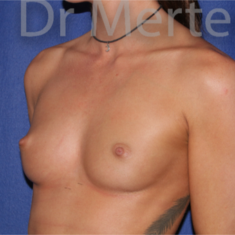 18-24 year old woman treated with Breast Augmentation before 3551259