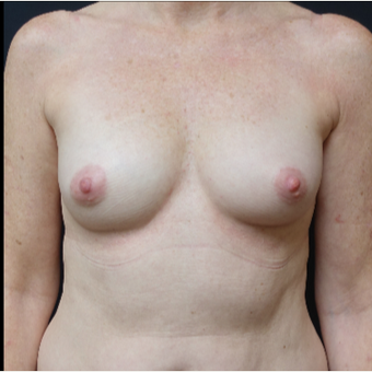 35-44 year old woman treated with Sientra Breast Implants before 3282536
