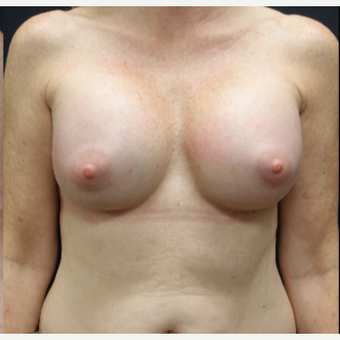 35-44 year old woman treated with Sientra Breast Implants after 3282536